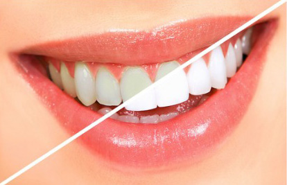 Airflow Teeth Cleaning